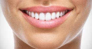 Il dentista è il mio migliore amico denti Il dentista è il mio migliore amico Denti 310x165